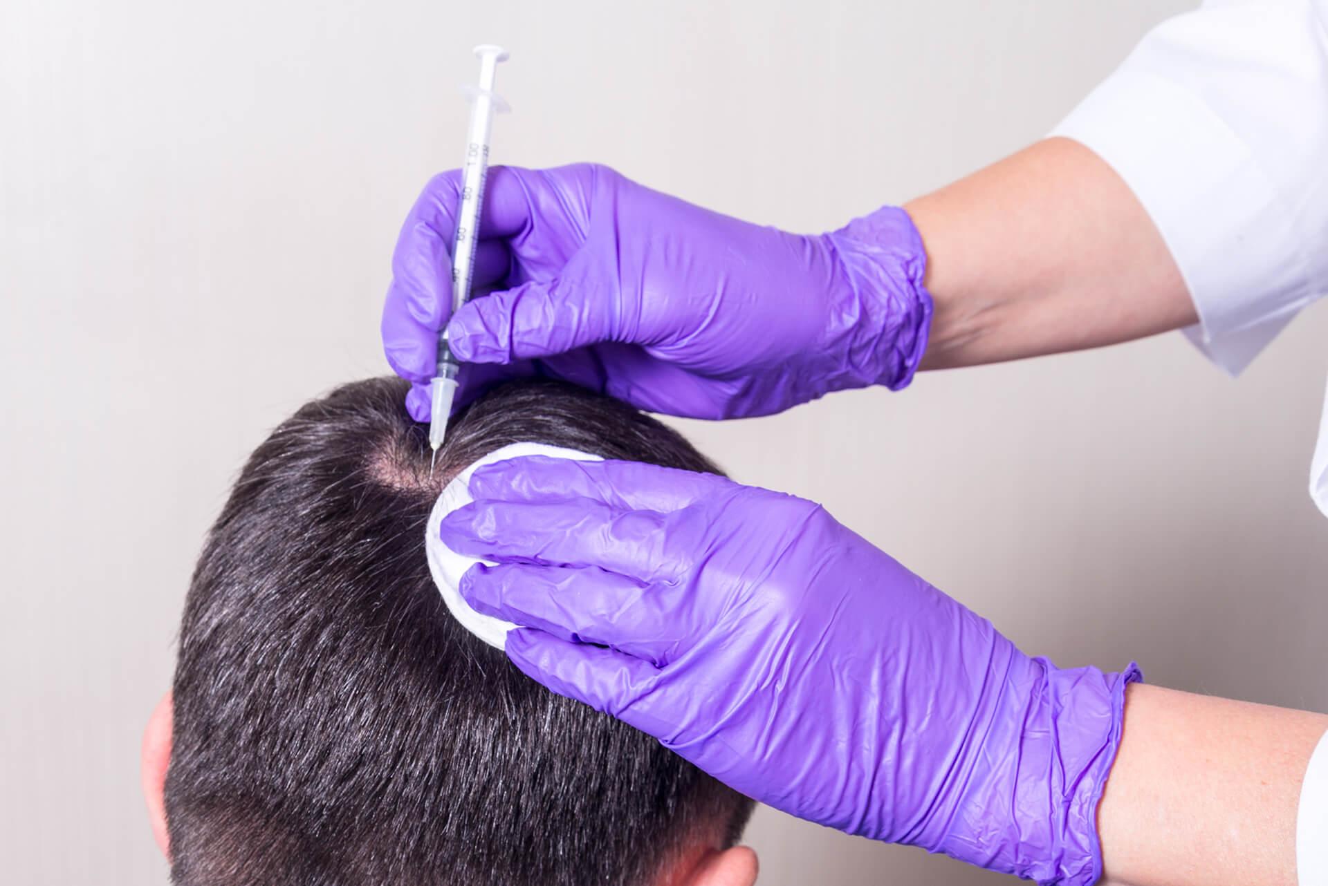 ¿Soy demasiado viejo para la cirugía de trasplante de pelo?